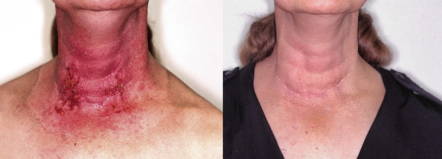Cancer patient who improved her post-radiation skin with Lexli products