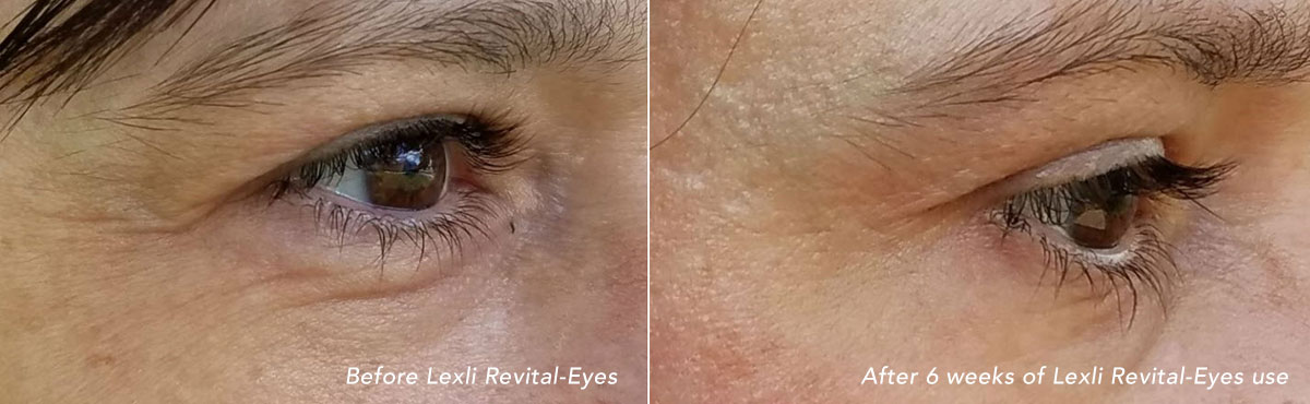 Before and after 6 weeks of using Lexli Revital-Eyes Cream