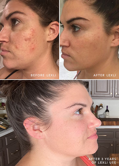 Kathryn Lewek's skin before and after using Lexli, and after 3 years of use