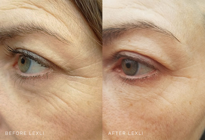 Teresa's Eyes Before and After Lexli Revital-Eyes Rejuvenating Cream