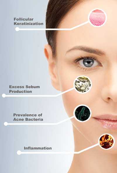 The four causes of acne
