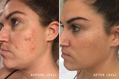 Kathryn Lewek's skin before and after using Lexli