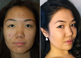 Laura's face before and after using Lexli's Acne Kit
