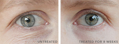 This customer saw remarkable change after using Revital-Eyes for 8 weeks