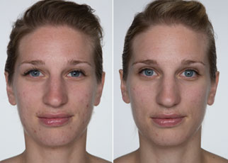 Trial Participant's face before and after using Lexli's Acne Kit